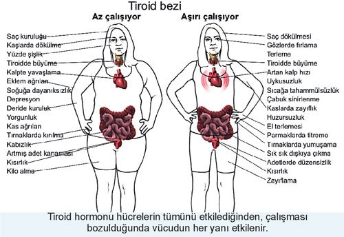 Tiroid Bezi Hastalığının Belirtileri Nelerdir ?