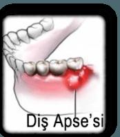 Diş Apsesi İçin Antibiyotik Diş Apsesi Nedir Apseli Diş Çekilir mi